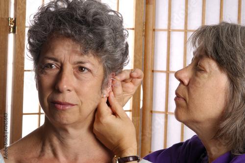 Photo acupuncturist needling ear of senior woman