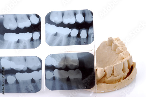 Fotografie, Obraz  dental  x-ray