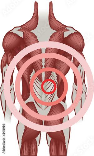 Fotografie, Tablou  back pain