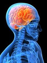 Röntgenbild Kopf Mit Gehirn