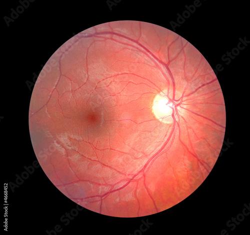 Fotomural Retina