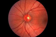 Retina - Optic Nerve - Human Eye