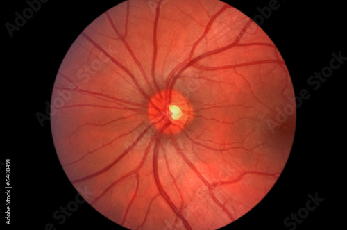 Cuadros en Lienzo  Retina - Optic Nerve - Human Eye