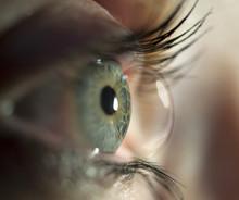 Kontaktlinse 3
