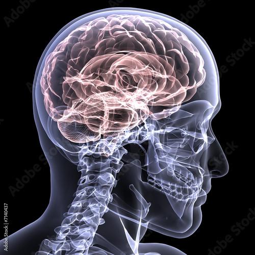 Photo  Skeleton X-Ray - Brain 1