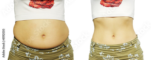 Obraz Female figure before growing thin and after growing thin - fototapety do salonu
