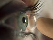 canvas print picture - kontaktlinse ins auge2