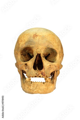 a skull of an shemale person isolated over white - Buy this stock ...