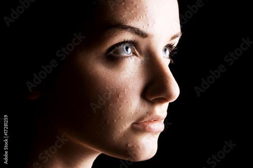 Female acne sufferer Canvas Print
