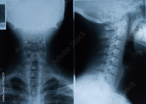 Fotografie, Obraz  X-Ray film of neck - front and side