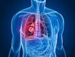 canvas print picture - transparenter Körper mit Lungentumor