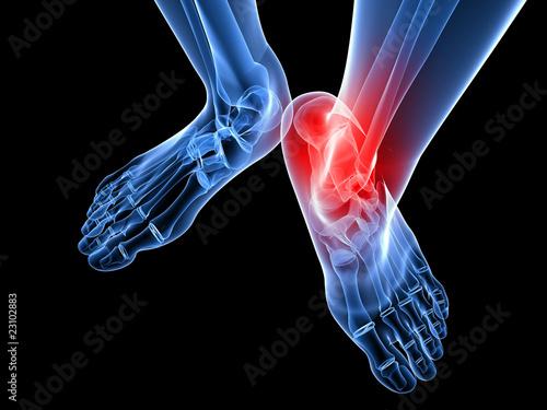Photo rot markiertes Fußgelenk