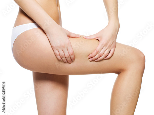 Obraz Woman squeezes cellulite skin on her legs - fototapety do salonu