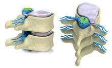 Prolapse Of Intervertebral Dis...