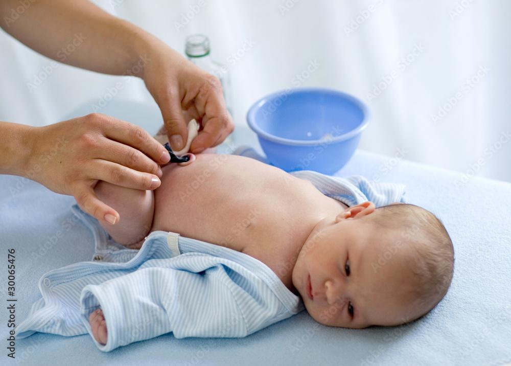 Fototapeta taking care of baby's navel