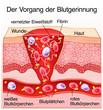 canvas print picture - Blutgerinnung Haut Wundheilung