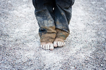 Child's Dirty Feet. Poorness Concept