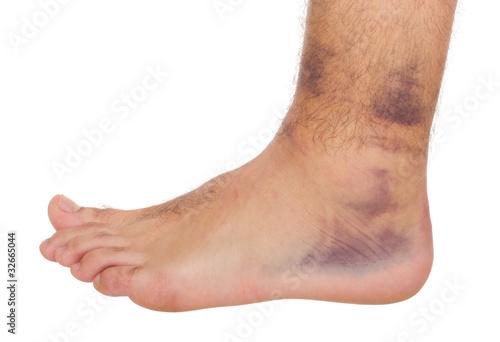 Photo Ankle Sprain
