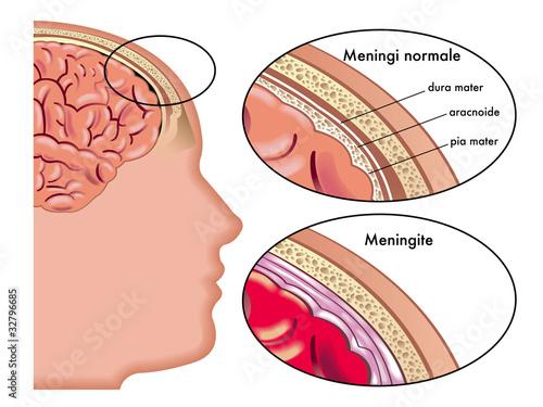 Meningite Canvas Print