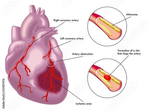infarto miocardico Canvas Print