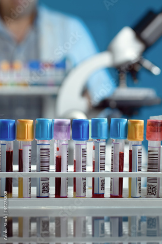 Foto  tray with tubes with blood samples