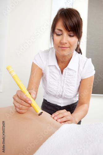 Fotografie, Obraz  Moxibustion Acupuncture Technique