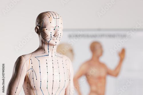 Canvas Print acupuncture model