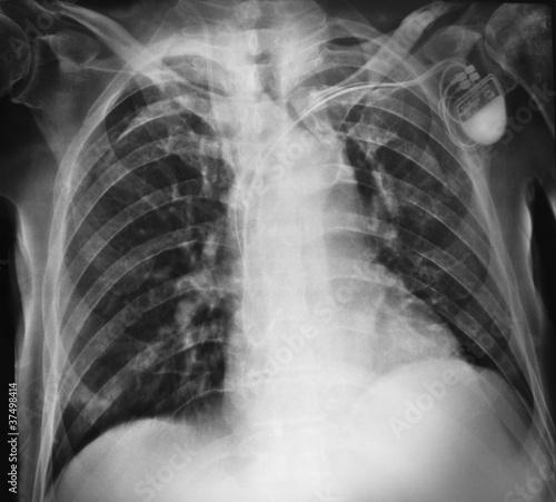 Photo radiografia del torace