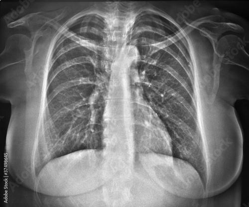 Photo radiografia del torace di donna