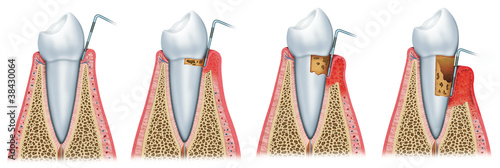 Sequence of Periodontitis #38430064