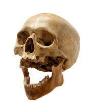 Skull Of The Person.