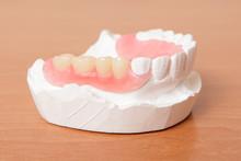Acrylic Denture (False Teeth)