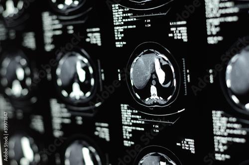 Pinturas sobre lienzo  MRI Scan Of Human Abdomen