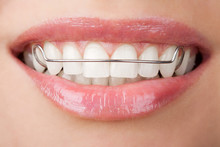 Teeth With Retainer