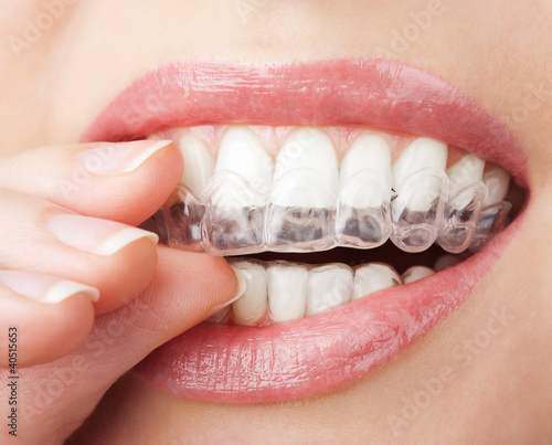 Photo teeth with whitening tray