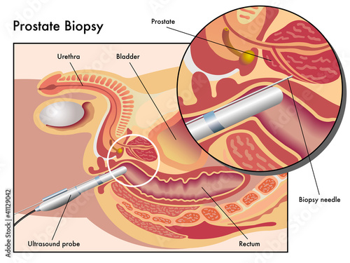 Fotografia, Obraz  Biopsia prostatica
