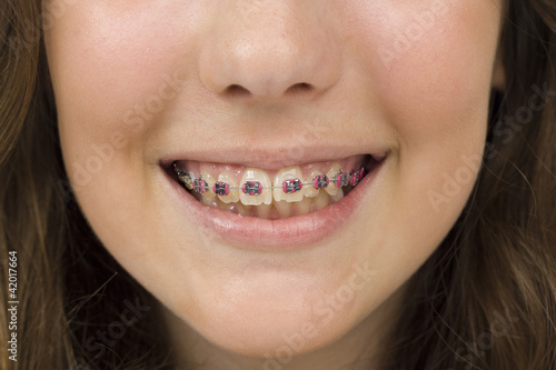 Fotografia  smile of a young woman with dentures