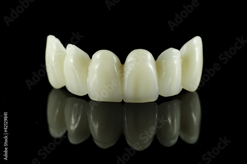 Fotografie, Obraz  Dental tooth bridge