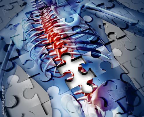 Fotografía  Human Back Disease
