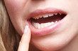Leinwandbild Motiv Frau mit Schmerzen am Zahnfleisch