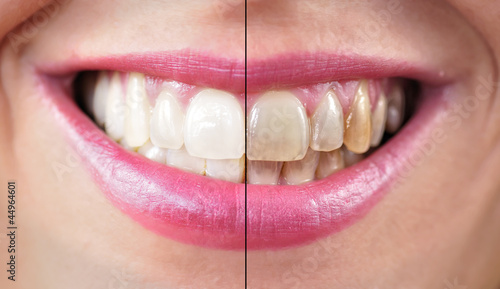 Limpieza dental. #44964601