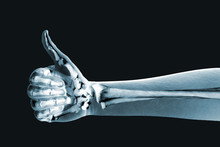 Dramatized X Ray Of A Hand Thu...