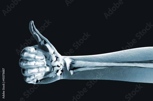 Fotografie, Obraz  dramatized x ray of a hand thumbs up