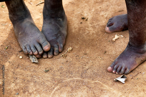 Staande foto Afrika Feet