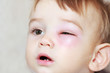 canvas print picture - little boy - dangerous stings from wasps near the eye