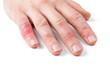 canvas print picture - Dermatitis