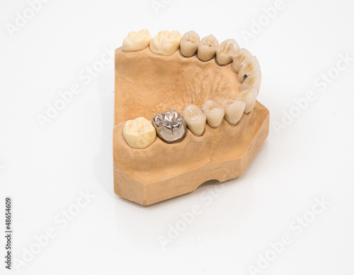 Fotografering  gold tooth on a mold