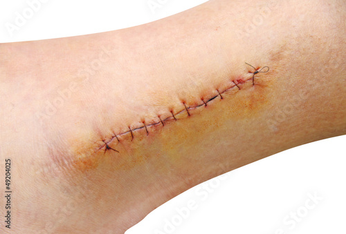 Photo  Stitches in the leg (ankle)