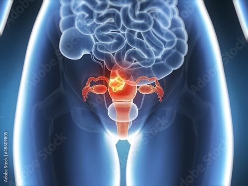 Vászonkép 3d rendered illustration - uterus cancer