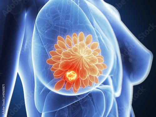 Foto 3d rendered illustration - breast cancer